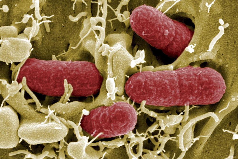 Zapping bactérias mortais usando tecnologia espacial