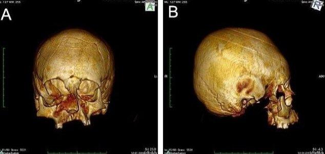 Crânios deformados são encontrados na Croácia